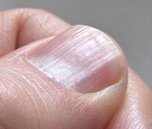 Protruding nails: what does this mean?
